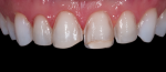 Fig 6. Minimally invasive preparation was performed by Maria Paranhos, DDS.