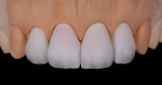 Fig 14. A second skin layer is added for morphology correction as well as to create a halo effect on the incisal edge.
