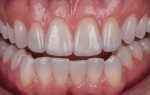 Fig 18. Six months after the restoration, intraoral and extraoral images show a much more esthetic smile.