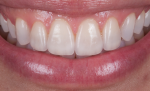 Fig 19. Six months after the restoration, intraoral and extraoral images show a much more esthetic smile.