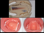 Fig 4. Milling a denture base and teeth from PMMA results in an esthetic option with premium strength.