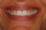 Preoperative close-up smile photograph.