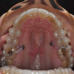 Occlusal view of the maxillary aligner in place with the elastics attached to the bone plate anchors.