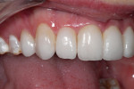 Figure 16  Soft-tissue health was excellent and there was no evidence of microleakage associated with IDS in this case. The most problematic area of crowding with the largest area of dentinal exposure was improved, and the completed smile rehabilitat