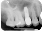 Figure 3  Radiograph of osseointegrated Biodenta tissue-level implant restored with Biodenta stock abutment and porcelain-fused-to-zirconium crown.