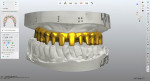The framework design was based on the design of the approved denture to ensure optimal tissue and tooth display.