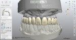 The crown design, which was selected from the laboratory's library, followed the form and shape of the denture teeth from the pre preparation model.