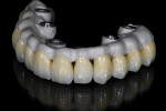 The milled zirconia full-contour crowns on the framework after glazing.