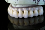 The milled zirconia fullcontour crowns assembled on the framework and refined prior to glazing.