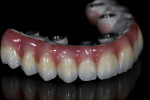 Pink composite was applied in a progressive layering process to create the gingiva.