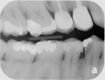 Preoperative radiograph of caries lesion on tooth No. 28.