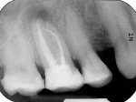 Figure 1  Radiographs showed an apical translucency and that a separated root canal instrument extruded out of the mesio-buccal root of tooth No. 16.