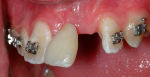 Fig 5. A bonded denture tooth was used to improve esthetics and provide orthodontic guidance for space closure.