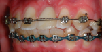 Fig 6. Conclusion of initial orthodontic treatment.