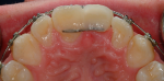 Fig 7. Space closure was created with proper mesial-distal proportions for replacement of the missing tooth.