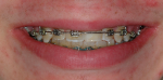 Fig 8. Orthodontic treatment was completed after a total of 8 years with the provisional bonded pontic replacing the maxillary left central incisor.
