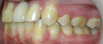 Fig 9 through Fig 11. Final orthodontic debond images revealed a noticeable reduction of incisor protrusion and proper mesial-distal distance from the teeth adjacent to the future implant.