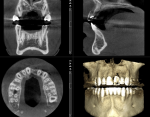 Fig 14. CBCT evaluation was used to facilitate proper planning and treatment.