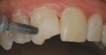 Micro air abrasion was performed to clean the tooth and remove the aprismatic enamel surface to increase mechanical retention.