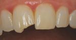 Pretreatment close-up view of previously treated fractured maxillary right central incisor that experienced debonding of its composite restoration.