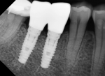 Fig 10 and Fig 11. In a single healed molar extraction site where the ridge was too narrow to place one wide implant (Fig 10) two 4.1-mm diameter implants were placed (Fig 11). The distance between the teeth at the level of the alveolar crest was 14.5 mm and the width of the ridge was 6.8 mm. Placing two narrower implants allowed the ITD to the adjacent teeth to be minimized. This case may be restored as either two bicuspids or one molar with a small cleansable embrasure between the implants.