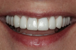 Figure 11  Bilateral harmony and optical consistency allow the patient to confidently present her smile in personal and business situations.