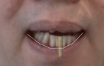 Fig 8. Using a screenshot of the video of the patient speaking, the lower lip movement was shown to be 8 mm.
