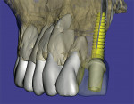 Figure 5  A 3D reconstruction of a maxilla showing an implant with a realistic abutment and virtual tooth.
