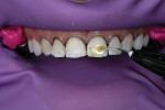 Once the teeth were properly cleaned, particle abraded, and total etched, a universal adhesive was placed and light cured.