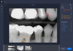Fig 6. A bitewing radiograph with AI annotations to support dentist communication with the patient is shown. Findings include but are not limited to caries, compromised margins, bone level, and furcation involvement. (Source: Overjet, Inc.)
