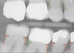 "Fig 3. The following image illustrates periodontal insights from AI radiographic assessment. Bone levels marked in red indicate potential areas of radiographic bone loss as measured from the CEJ to crest of bone. Calculus is detected automatically and highlighted with the orange box. In addition to perio charting, the ""periodontal health"" of a practice can now be assessed and quantified. (Source: Overjet, Inc.)"
