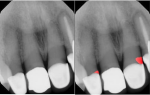 Fig 4. Detection of defective margins around prosthetic restorative materials is shown. In the image on the right, defective margins are identified in red on teeth Nos. 7 (ceramo-metallic crown) and 9 (ceramo-metallic crown). (Source: Overjet, Inc.)