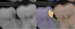 Fig 5. Class 2 caries detection on a posterior radiograph  is shown. In the image on the right, the carious lesion is masked in yellow on tooth No. 19. Additional tooth numbering AI models and bone level models are also being run and results displayed in this image. (Source: Overjet, Inc.