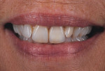 Figure 14  The case at 6 months blends harmoniously with the surrounding dentition.