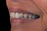 Figure 15  The case at 6 months blends harmoniously with the surrounding dentition.