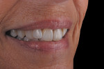 Figure 16  The case at 6 months blends harmoniously with the surrounding dentition.