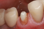 Buccal view of the completed crown preparation.