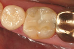Figure 5  Preoperative clinical condition of tooth No. 30 with undermined lingual cusps.