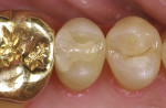 Figure 13  Evaluation of Paradigm MZ100 inlay on tooth No. 13 at 2-year recall (Figure 12), 6-year recall (Figure 13), and 10-year recall (Figure 14).