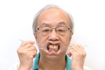 Fig 4. Standard digital smile design retracted view with the patient wearing his denture.