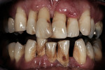 Figure 1  The patient presented with severe generalized periodontal disease and bone loss of existing teeth.