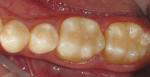 Figure 9  Occlusal view of the.completed Tetric EvoCeram Bulk Fill restorations.