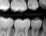 Comparison of the initial pretreatment bitewing radiograph and the posttreatment 6-month follow-up bitewing radiograph, showing proximal radiolucencies and the development of an open margin in the gingival floor of the Class II resin based composite restoration.