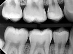 Posttreatment 13-month bitewing radiograph showing insignificant progression of the radiolucencies and possible remineralization in some areas.