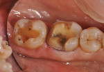 Figure 2  Tooth No. 30 was prepared for an onlay and tooth No. 31 was prepared for an inlay.