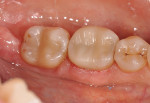 Figure 3  The restorations were tried in the mouth after milling.