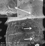 Fig 13. Heat-induced melting of SLA implant surface (double arrow) treated with diode laser. Residual cement on implant surface also exhibited melting and significant cavitational defects (arrow). Original magnification of 20x, Bar = 1 mm. Inset, original magnification of 100x, Bar = 200 μm.