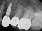 Fig 7. Periapical radiograph of No. 12 titanium abutment and screw-retained zirconia crown.
