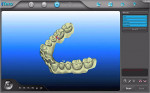 Figure 2  iTero digital impression scan for Invisalign treatment.