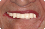 Fig 6. The esthetic/functional problems are unchanged when simple denture duplications are used as try-ins.